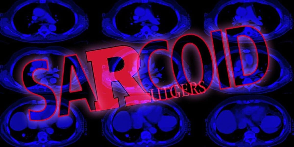 Sarcoid @ Rutgers: Looking For Clues 11