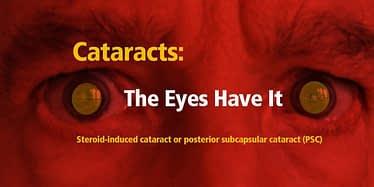 Cataracts-The-Eyes-Have-It